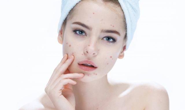 脸上的痘印怎么消得快,如何改善脸上的痘印   脸上的痘印出来吃饭么