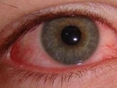 喝绿茶的好处_【眼角膜发炎几天能好】【图】眼角膜发炎几天能好 让你远离 ...